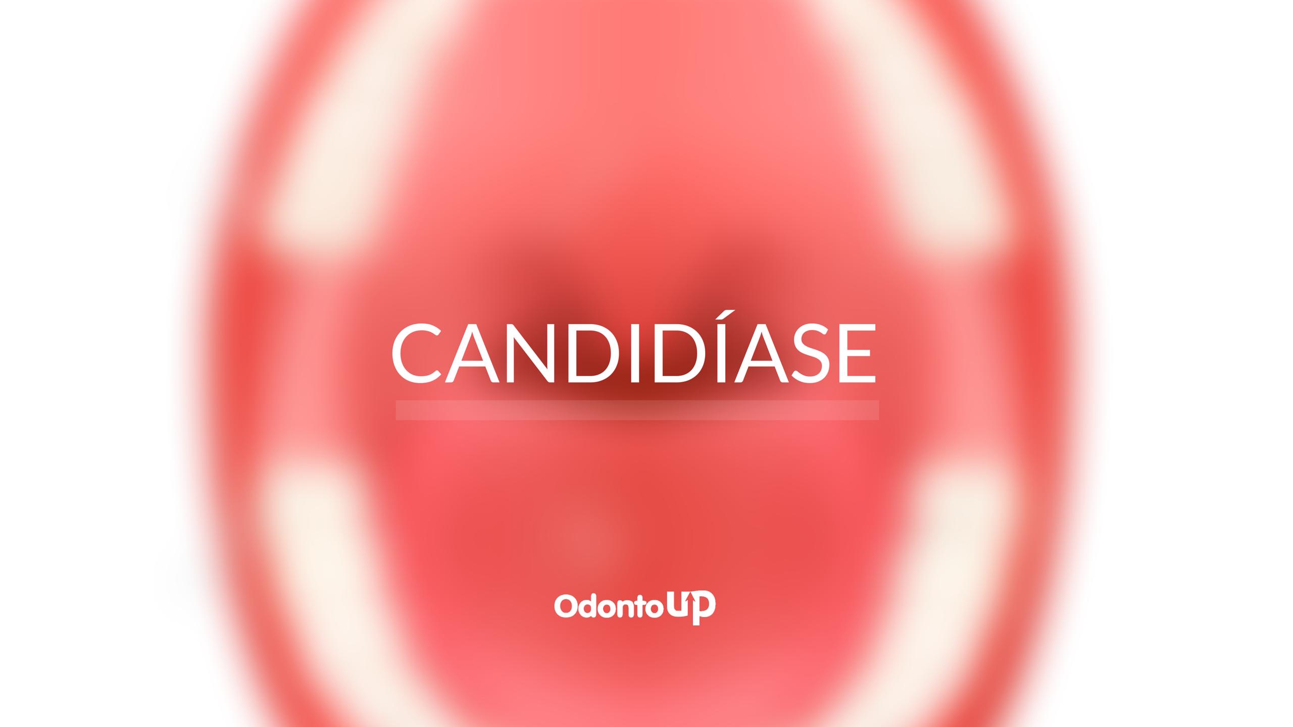Candidíase – OdontoUp
